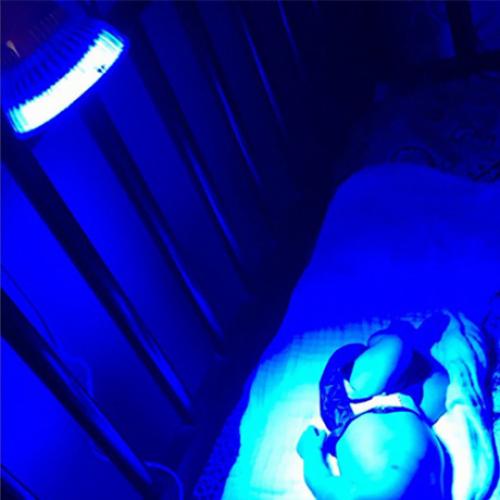 LED лампа для фототерапии лечит новорожденного
