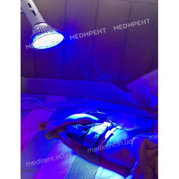 Облучение ультрафиотетовым светом с помощью LED лампы для лечения желтушки у новорожденных