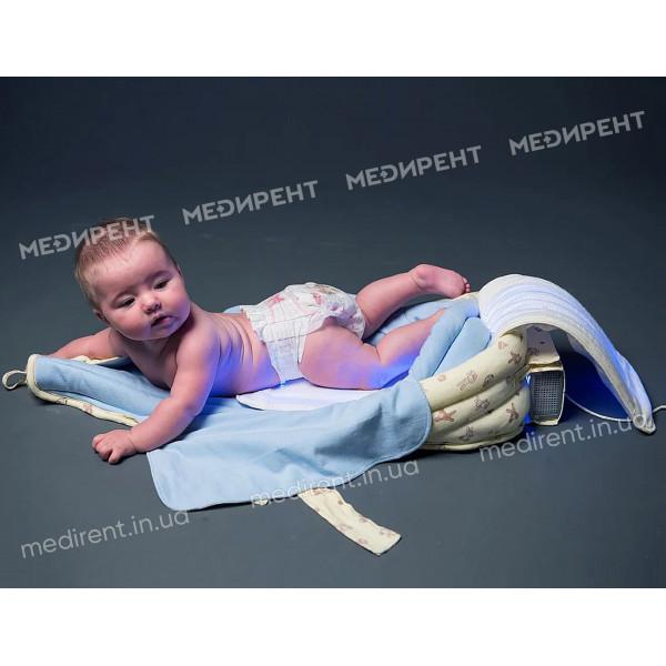 """Новорожденный перед сеансом фототерапии на """"гнезде"""" для лечения желтушки"""